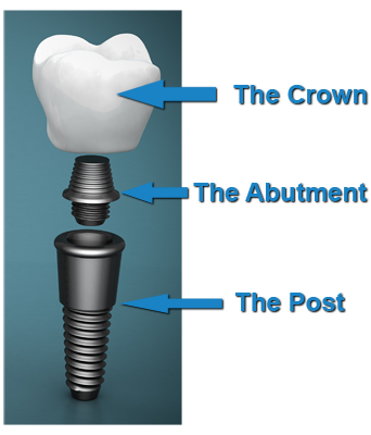 post-crown-abutment2